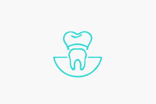 Crowns, veneers and bridges - North West Dental in Christchurch